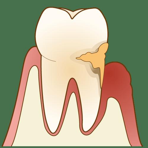 中度以上に進行した歯周病は、外科的な治療をします