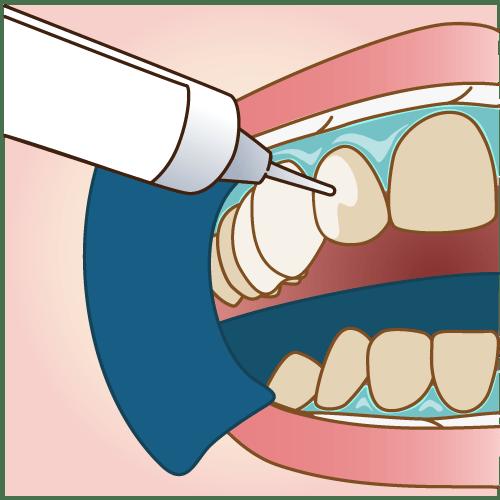 歯のクリーリング歯垢・歯石の除去